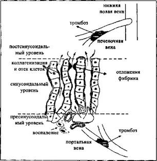 Чем опасно варикозное расширение вен малого таза