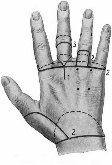 Вычленение в локтевом суставе ключично лопаточный сустав