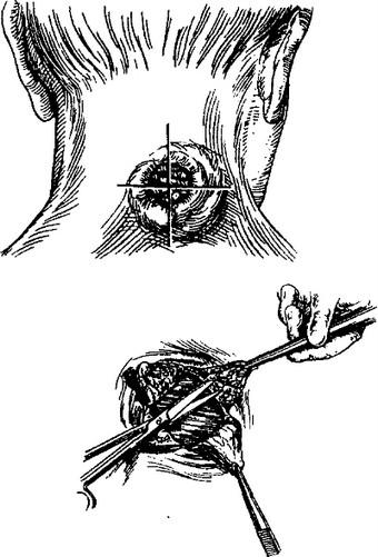 Техника вскрытия фурункула