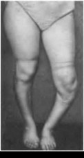 деформация коленного сустава у детей фото