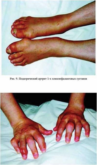 Ревматоидный артрит чем лечить в домашних условиях 198