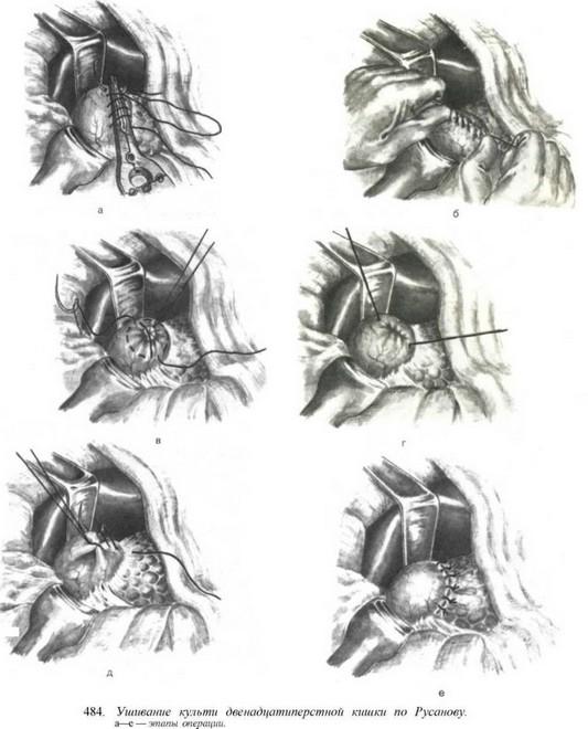 Холецистогастростомия