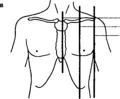 Схема топографические линии грудной клетки Перкуссия легких: сравнительная, топографическая