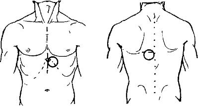 Стриктура пищевода анализ крови