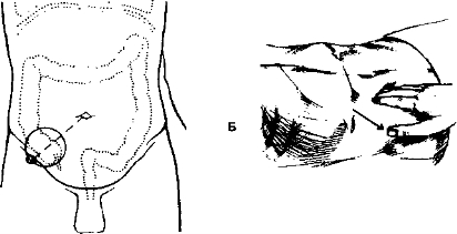 Тимпанит при перкуссии живота