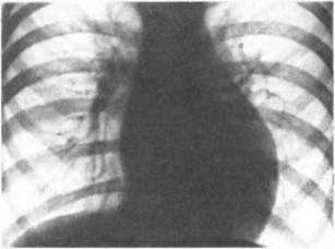 Рис. 63. Корригированная транспозиция магистральных сосудов. Рентгенограмма грудной клетки. Объяснение в тексте.