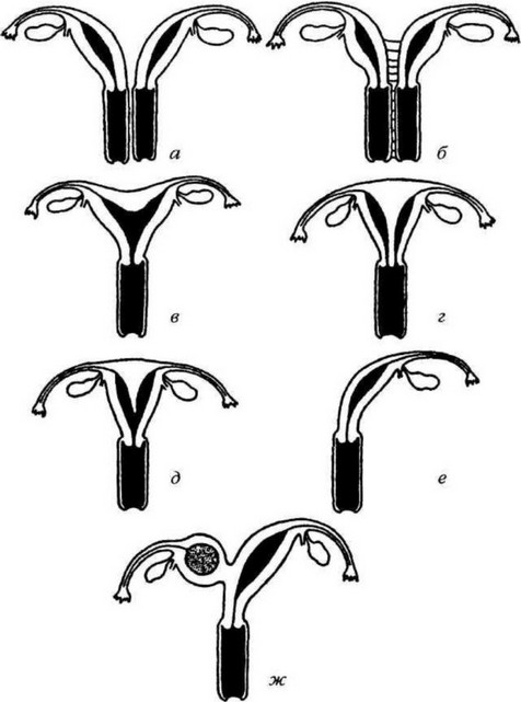 Наличие матки при интерсексуализме
