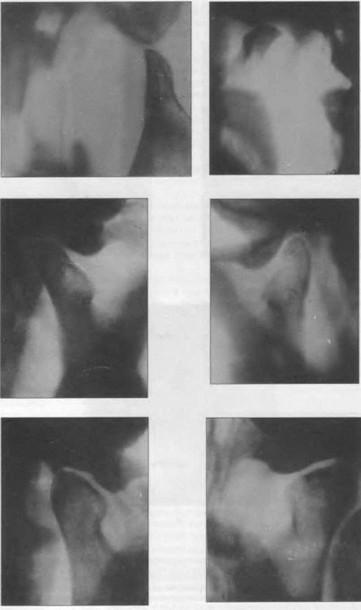 Травка височно челюстного сустава клиника частная лечения суставов нижневартовск