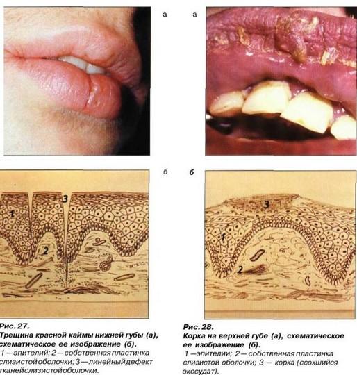 Изъязвление слизистой оболочки полости рта