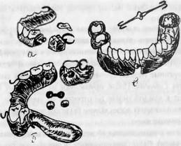 Лечение ложного сустава по курляндскому лучезапястный сустав растяжения