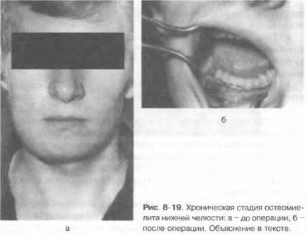 Остеомиелит челюсти клиника диагностика лечение